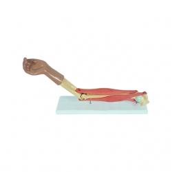 Model ruky s funkčným lakťovým kĺbom