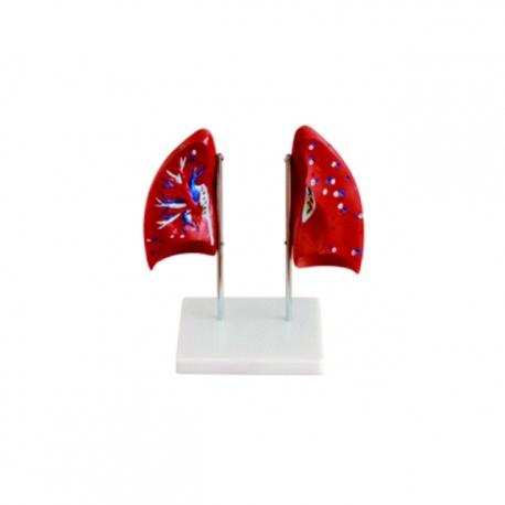 Model ľudských pľúc